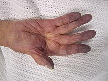 Blue fingers, cyanosis photo