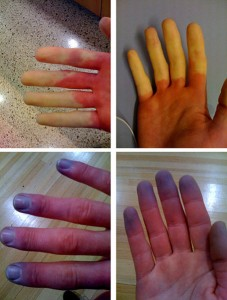 Raynaud's Syndrome Photo