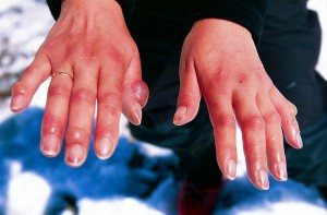 Chilblains on the fingers photo