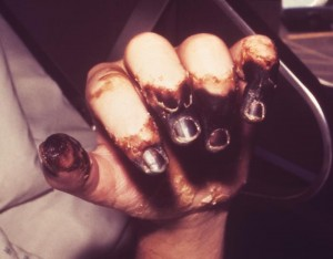 Black fingers, gangrene, plague photo