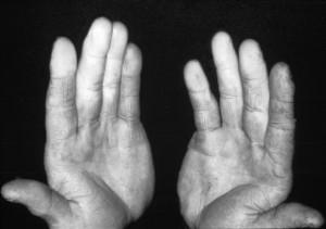 Vibration white finger photo