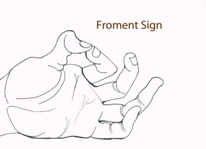 Froment's Sign