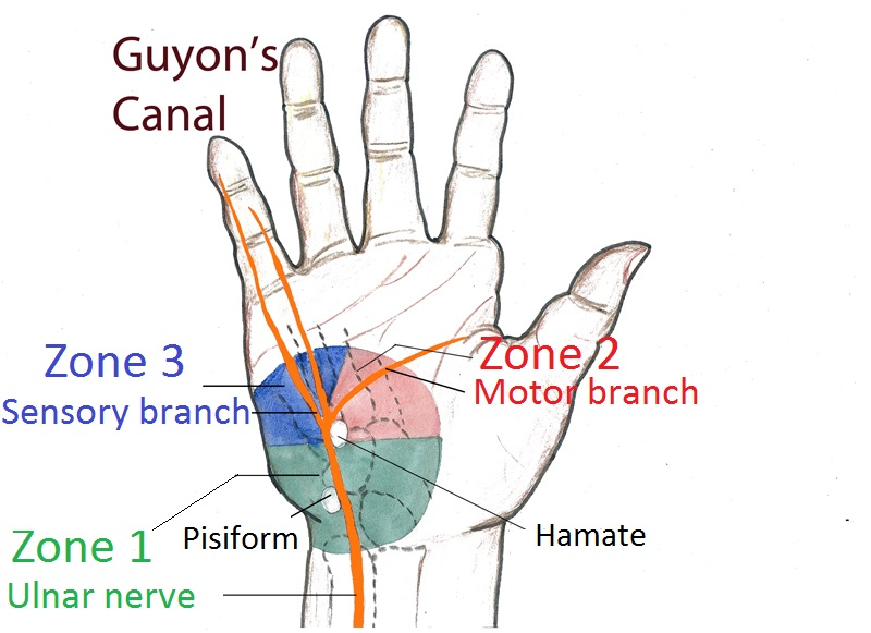 Guyon's canal zones picture