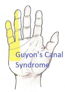 Guyon's canal syndrome picture