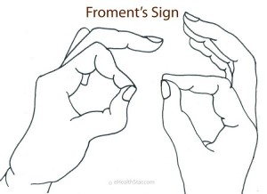 Picture of Froment's Sign