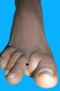 Ganglion Cyst on Foot Picture