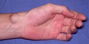Ganglion Cyst on Wrist Picture