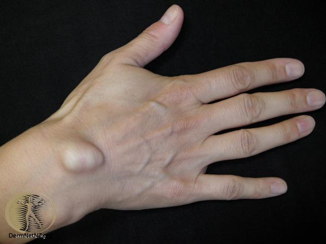 Ganglion Cyst (Wrist, Knee, Foot, Ankle) Pictures, Surgery