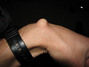 Ganglion cyst - wrist