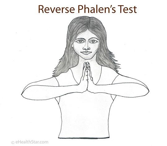 Reverse Phalen's Test
