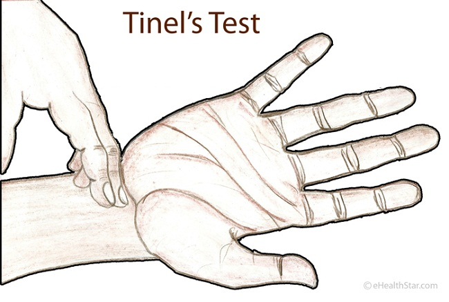 Tinel's Sign Picture