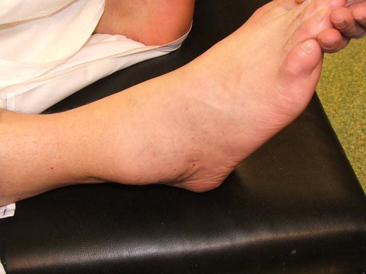 ganglion cyst ankle