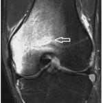geographic bone bruise knee mri image