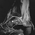 bone bruise ankle talus MRI