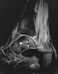 Bone Bruise Types, Symptoms, Treatment, Healing Time