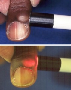 digital mucous cyst light