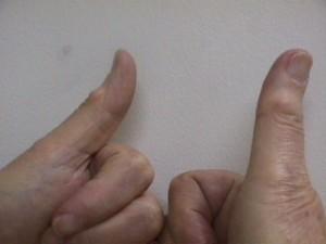 digital mucous cyst thumb
