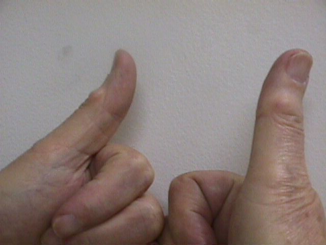 What could cause a hard growth and pain in my thumb joint