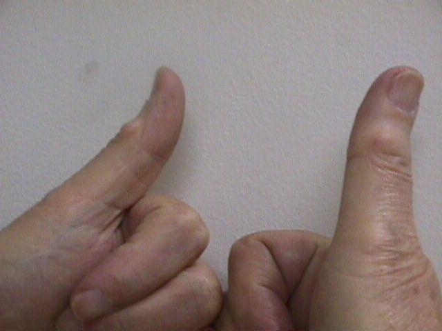 in joint thumb cysts metacarpophalangeal ganglion