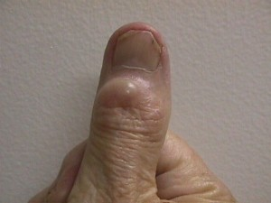 mucous ganglion cyst thumb