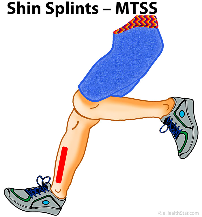 Shin-Splints-Medial-Tibial-Stress-Syndrome-MTSS-Image