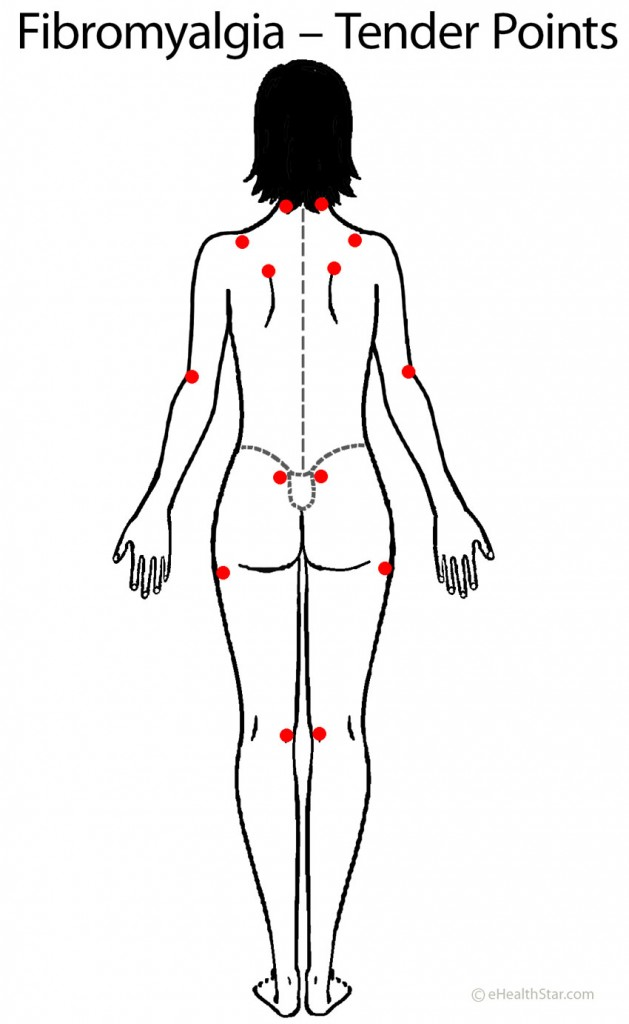Fibromyalgia Tender Points Image