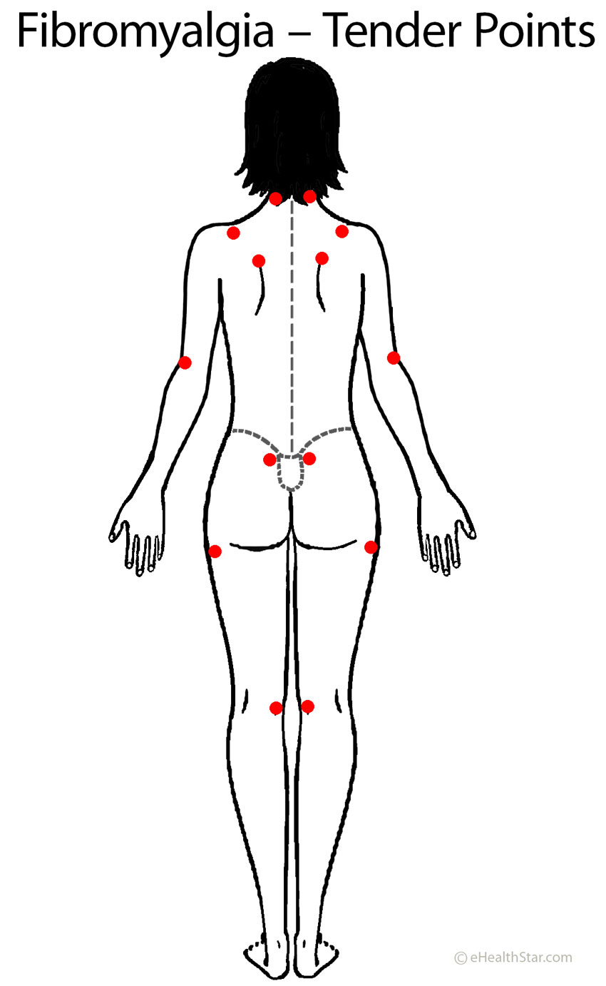 Back pain: fibromyalgia tender points