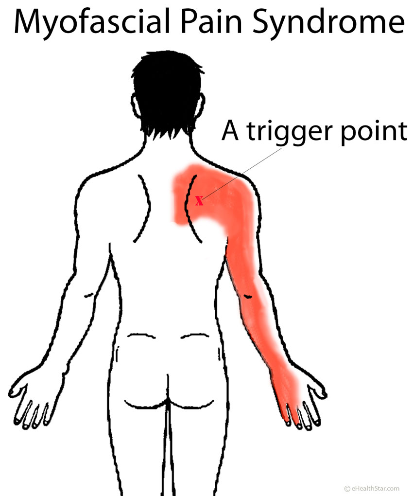 Shoulder Blade Pain Left Right Or Under Scapula