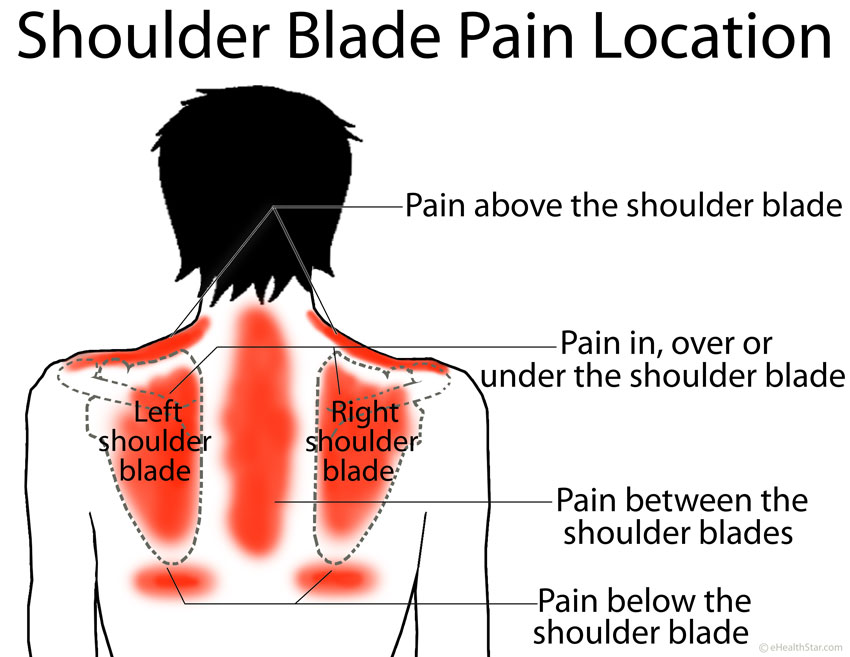 Shoulder Blade Pain Location Left Right Under Between Picture