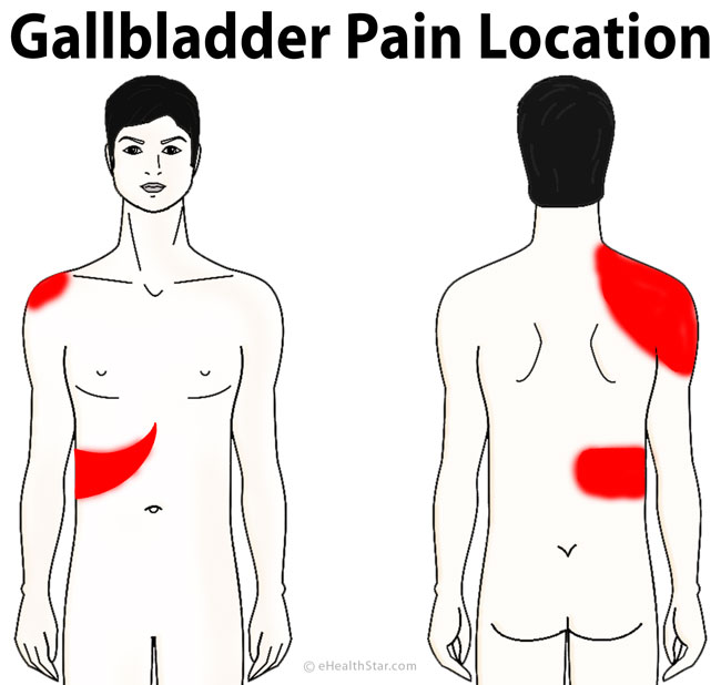 Gallbladder Pain Location Diagram, Symptoms, Causes ...