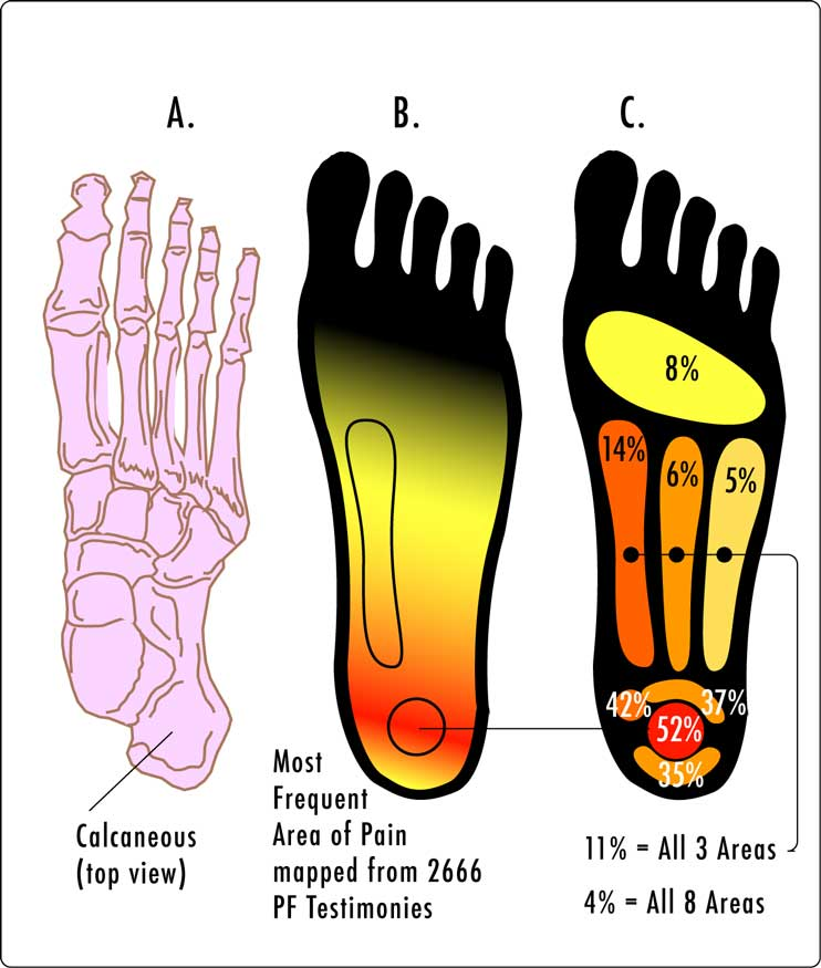 Plantar fasciitis pain location