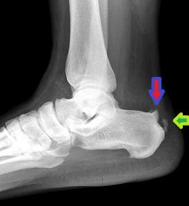 Posterior heel spur - Haglund deformity, pump bump
