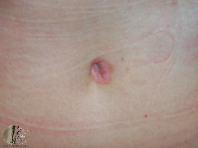 Psoriasis around the belly button