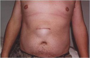 Ventral hernia above the belly button