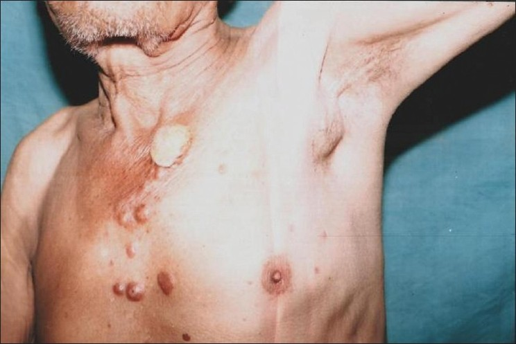 Armpit lump - swollen lymph node due to leukemia