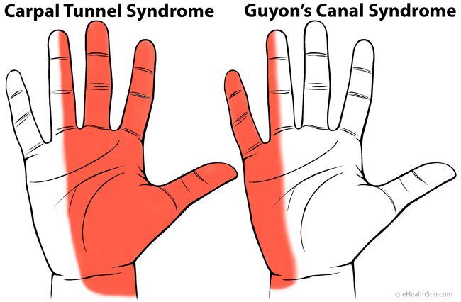 Carpal tunnel and Guyon canal syndrome pain