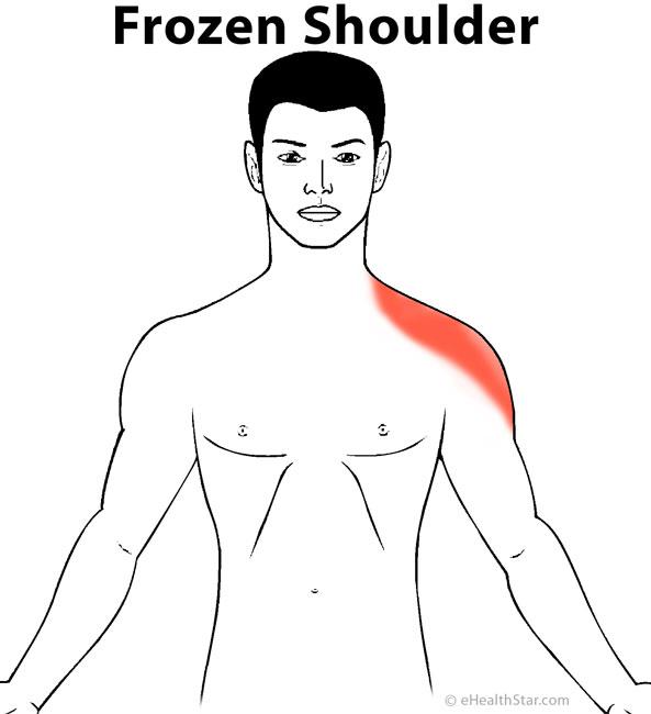 Frozen shoulder - adhesive capsulitis pain