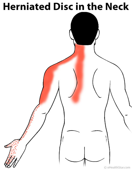 Back Pain: Upper, Middle, Right, Left, Sudden, Severe ...