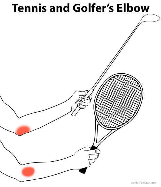Pain in tennis and golfer's elbow