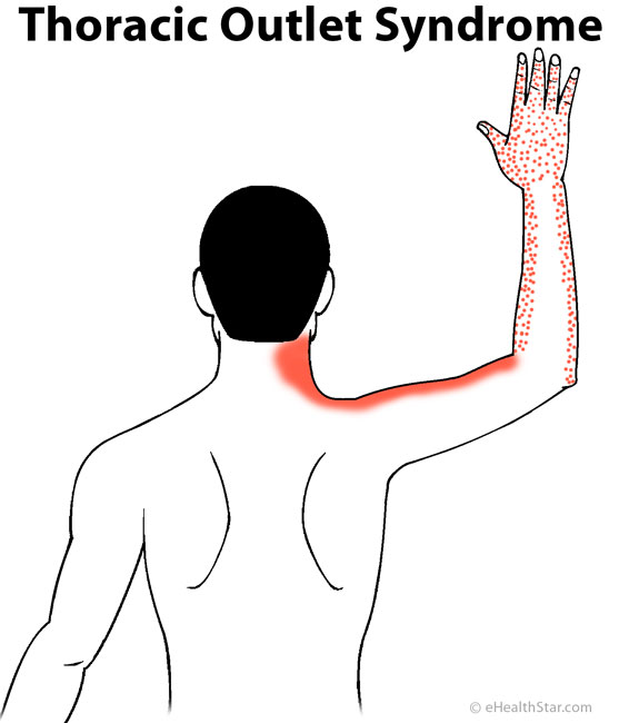 Arm Pain: Left, Right, Both, Sharp, Dull, Muscle, Nerve, in Women ...