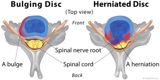 Bulging and herniated disc