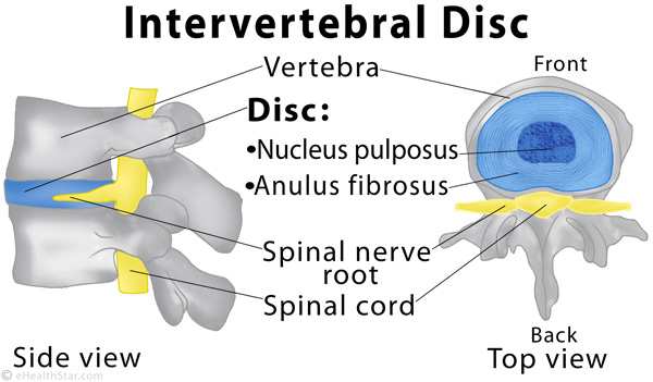What does a slipped disk look like