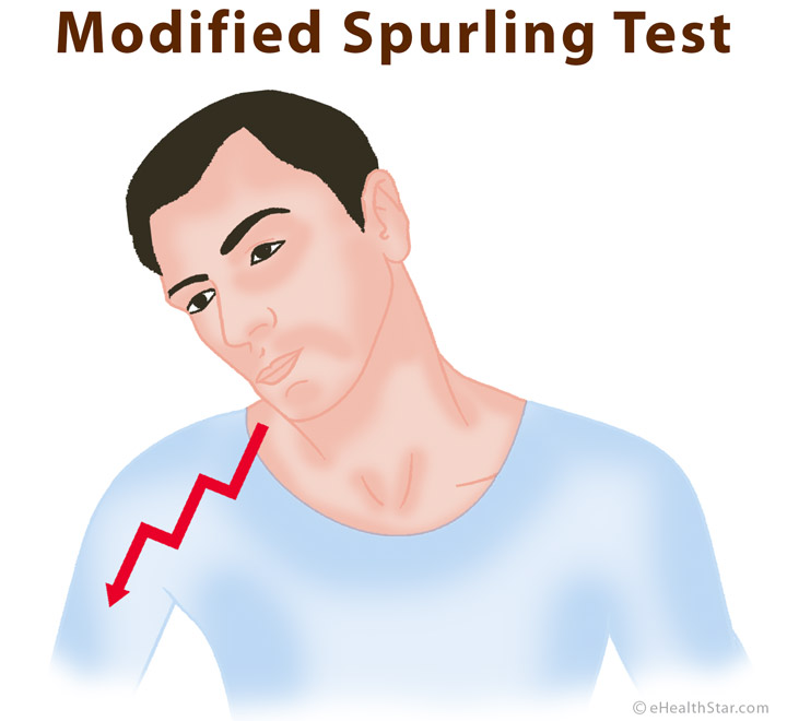 Modified Spurling test