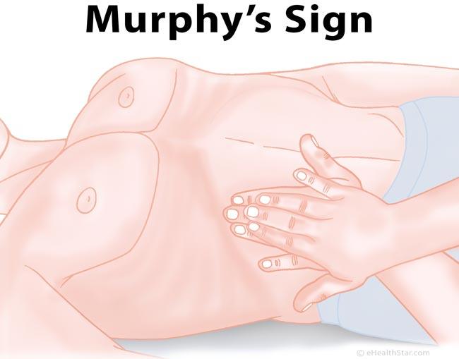 Murphy sign