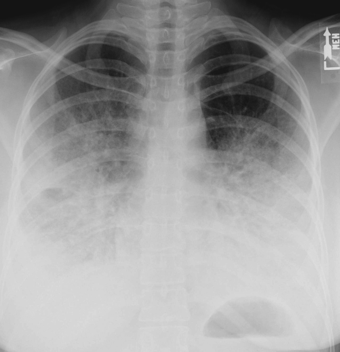 Bilateral pneumonia: symptoms, causes, treatment. Bilateral pneumonia in children 36