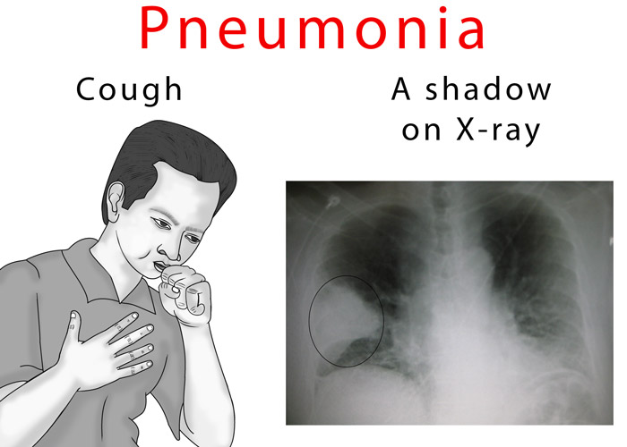 Pneumonia Chest X-ray image