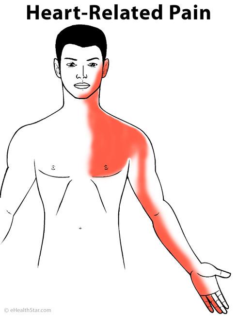 Coronary heart disease pain (angina pectoris) location and radiation