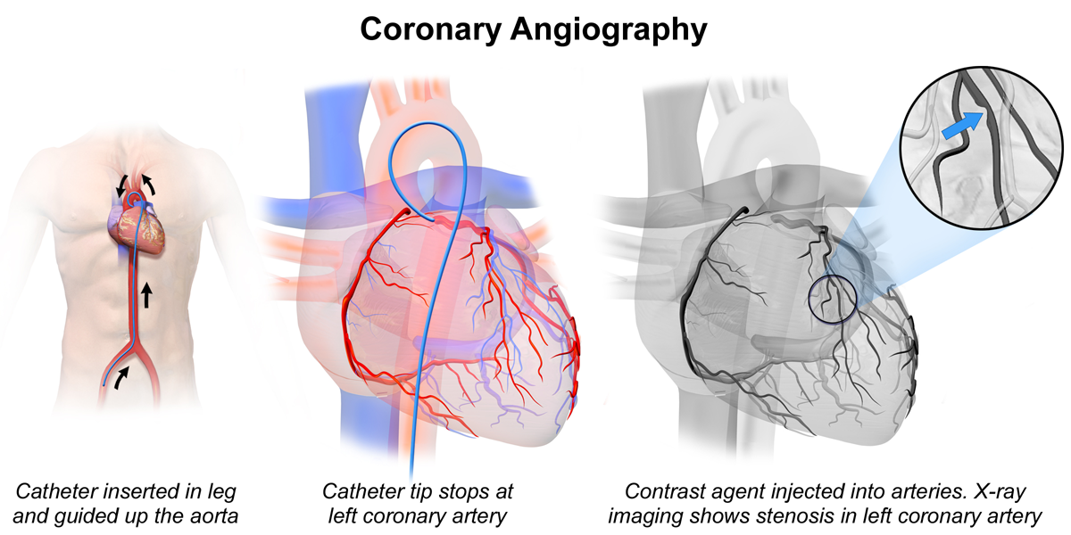 Coronary heart disease - angiography