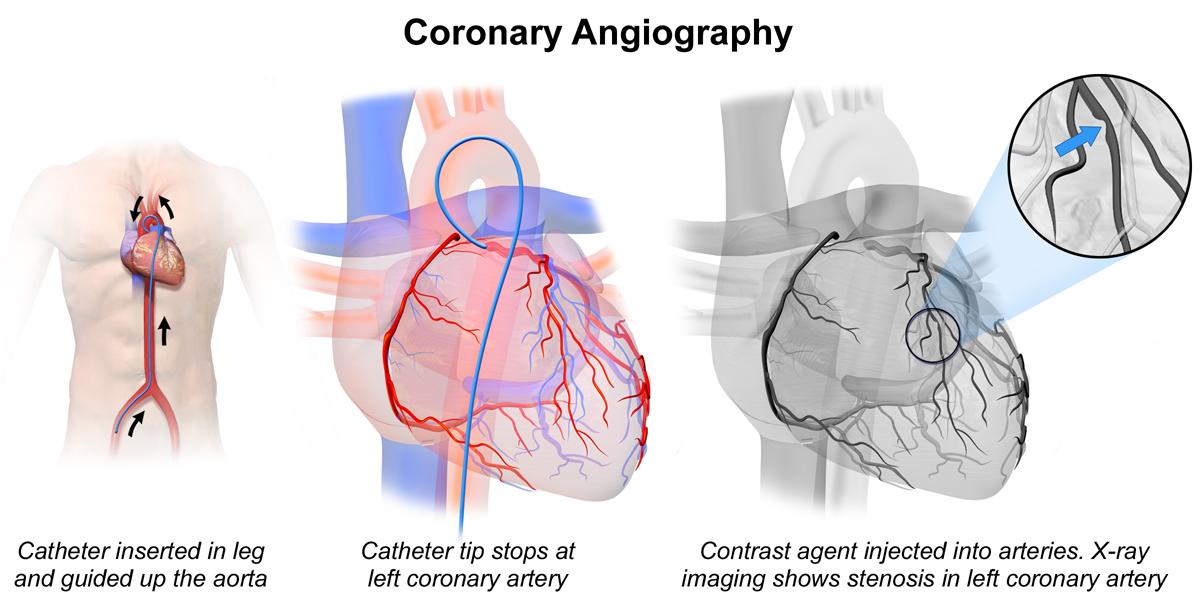 Coronary heart disease - angiography