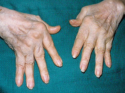 Rheumatoid arthritis on the hands
